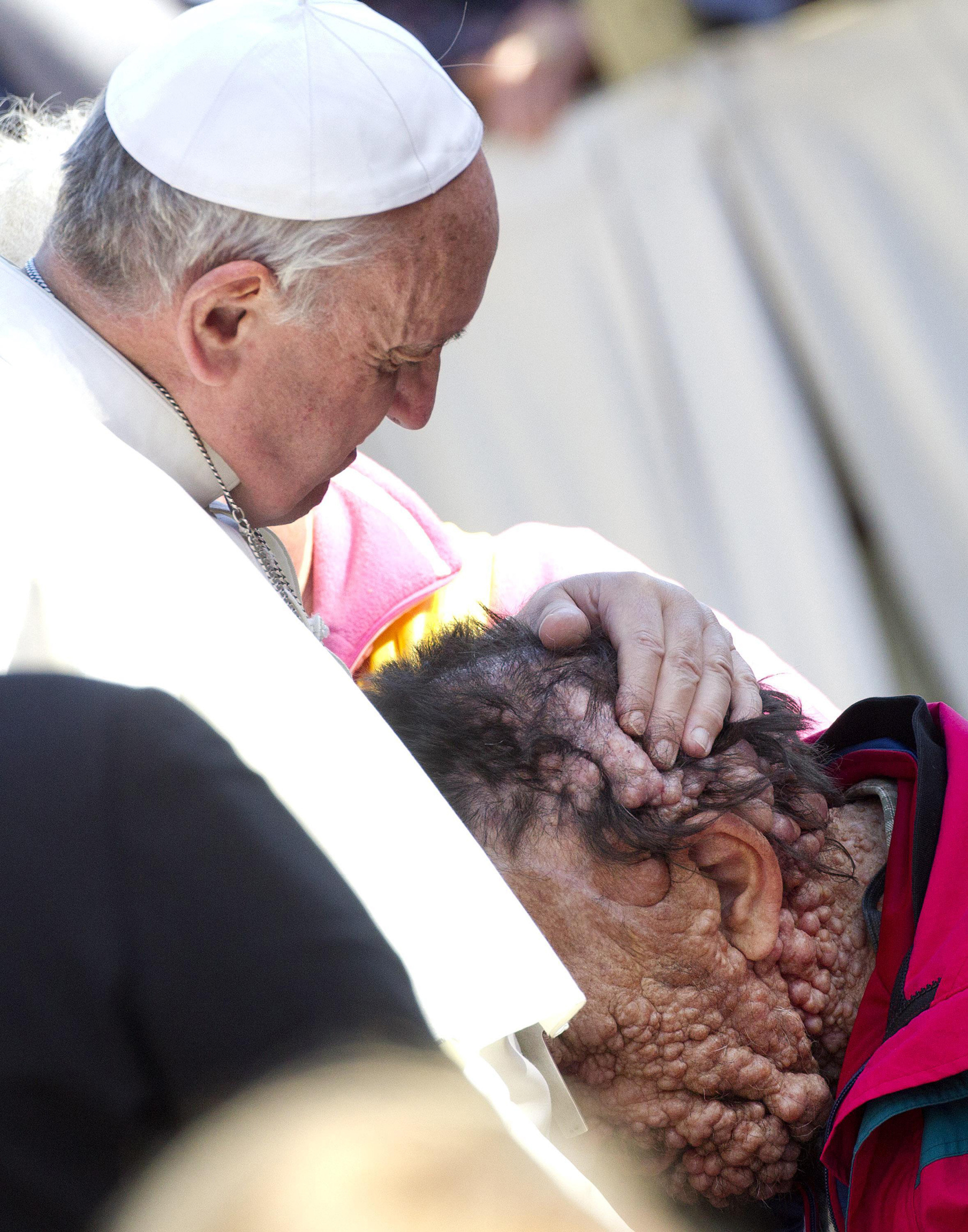 Pope embraces man disfigured by neurofibromatosis